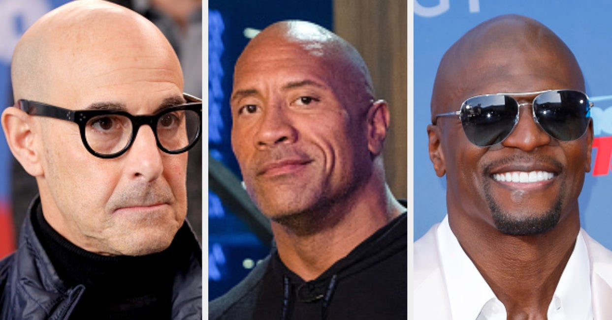 These Famous People Don't Have Hair — Know Who They Are?